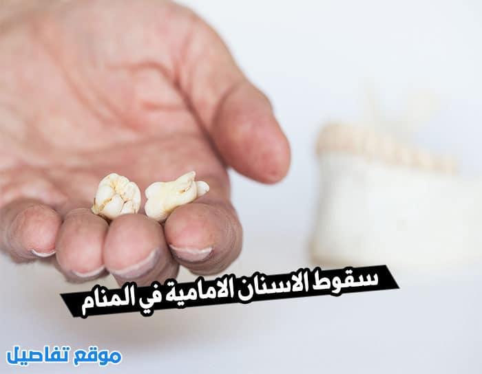 سقوط الاسنان الامامية في المنام لابن سيرين وما دلالاته موقع تفاصيل
