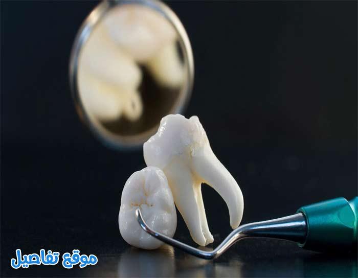 تفسير حلم خلع الضرس في المنام وكل ما يتعلق بسقوط الأسنان موقع تفاصيل